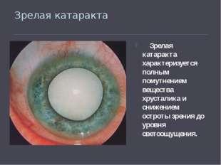 Зрелая катаракта Зрелая катаракта характеризуется полным помутнением вещества