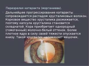 Перезрелая катаракта (морганиева). Дальнейшее прогрессированиекатаракты соп