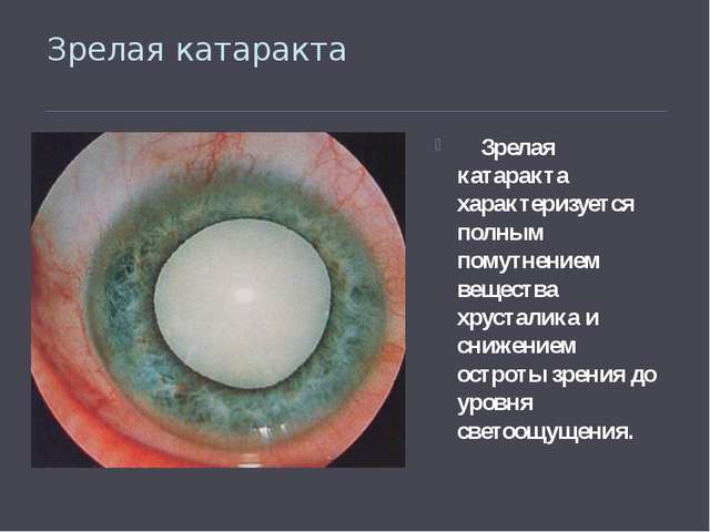 Зрелая катаракта Зрелая катаракта характеризуется полным помутнением вещества...