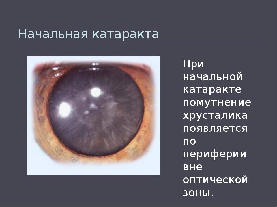Начальная катаракта При начальной катаракте помутнение хрусталика появляется...