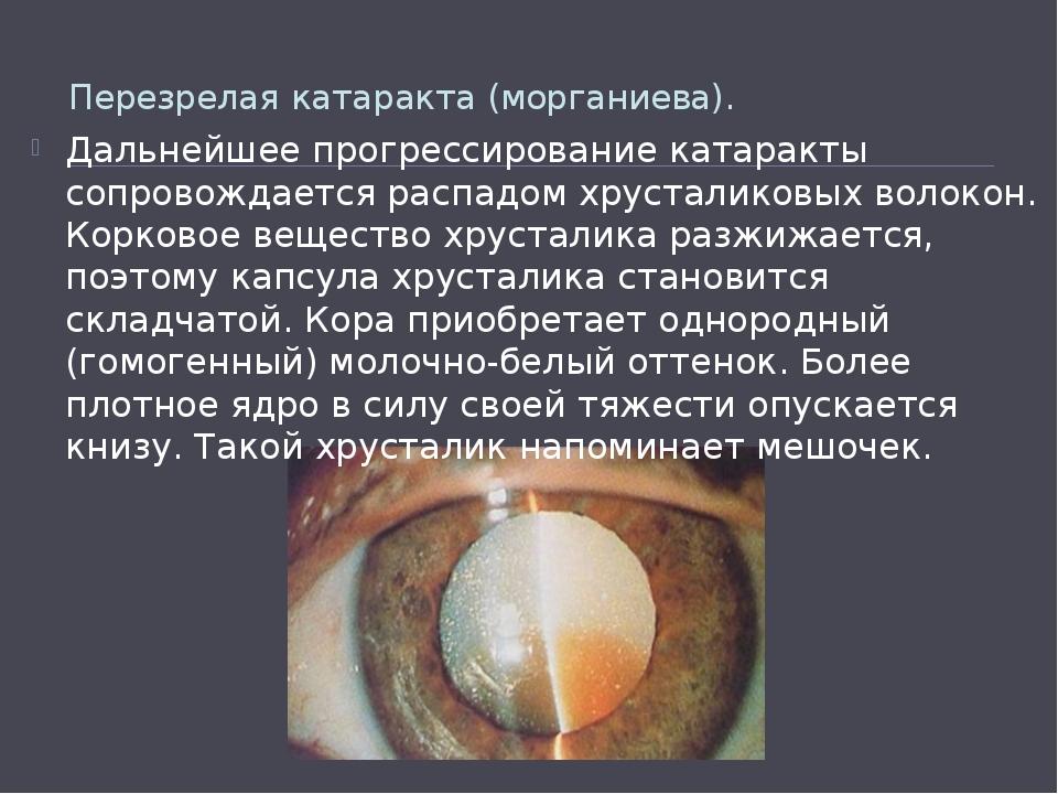 Перезрелая катаракта (морганиева). Дальнейшее прогрессированиекатаракты соп...