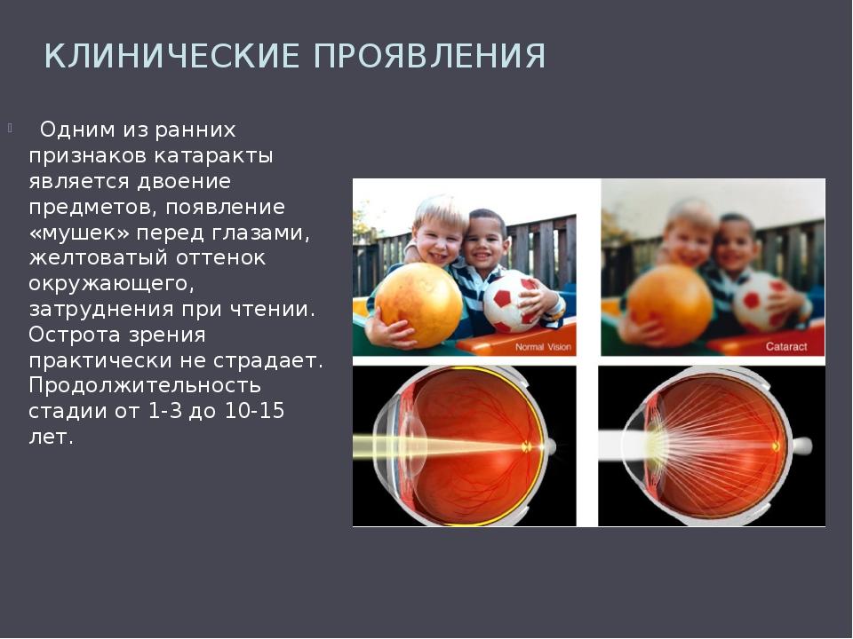 КЛИНИЧЕСКИЕ ПРОЯВЛЕНИЯ Одним из ранних признаков катаракты является двоение п...