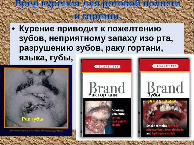 Курение приводит к пожелтению зубов, неприятному запаху изо рта, разрушению з...