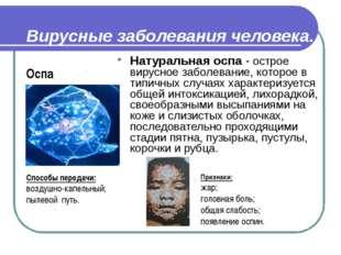 Вирусные заболевания человека. Натуральная оспа - острое вирусное заболевание