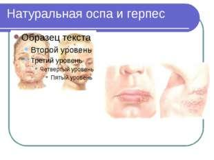 Натуральная оспа и герпес
