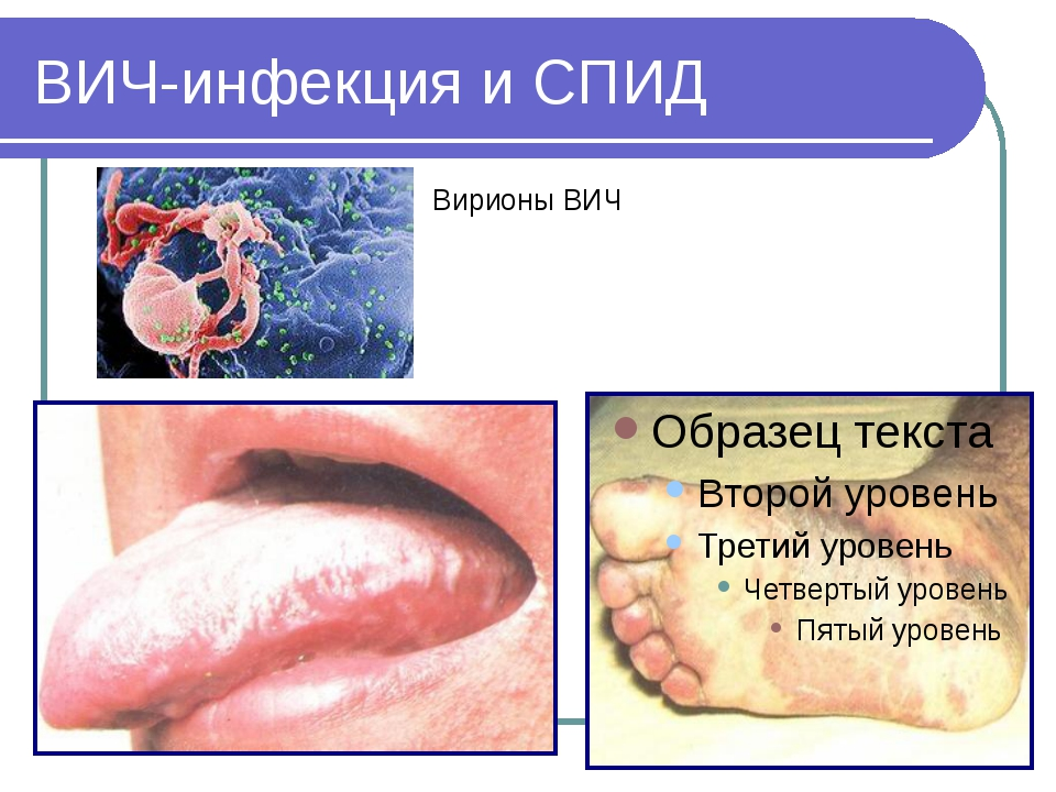 ВИЧ-инфекция и СПИД Вирионы ВИЧ