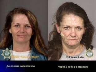 До приема наркотиков Через 2 года и 5 месяцев