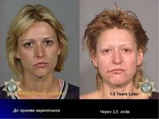 До приема наркотиков Через 1,5 года