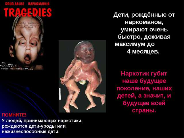 Дети, рождённые от наркоманов, умирают очень быстро, доживая максимум до 4 ме...