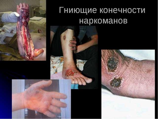 Гниющие конечности наркоманов