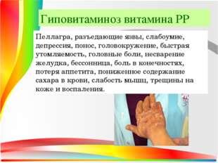 Гиповитаминоз витамина РР Пеллагра, разъедающие язвы, слабоумие, депрессия, п