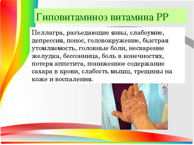 Гиповитаминоз витамина РР Пеллагра, разъедающие язвы, слабоумие, депрессия, п...