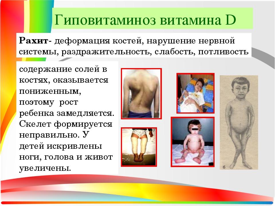 Рахит- деформация костей, нарушение нервной системы, раздражительность, слабо...