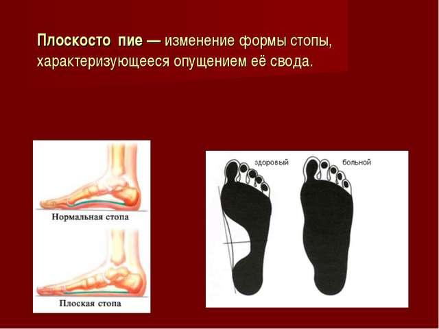 Плоскосто́пие — изменение формы стопы, характеризующееся опущением её свода.