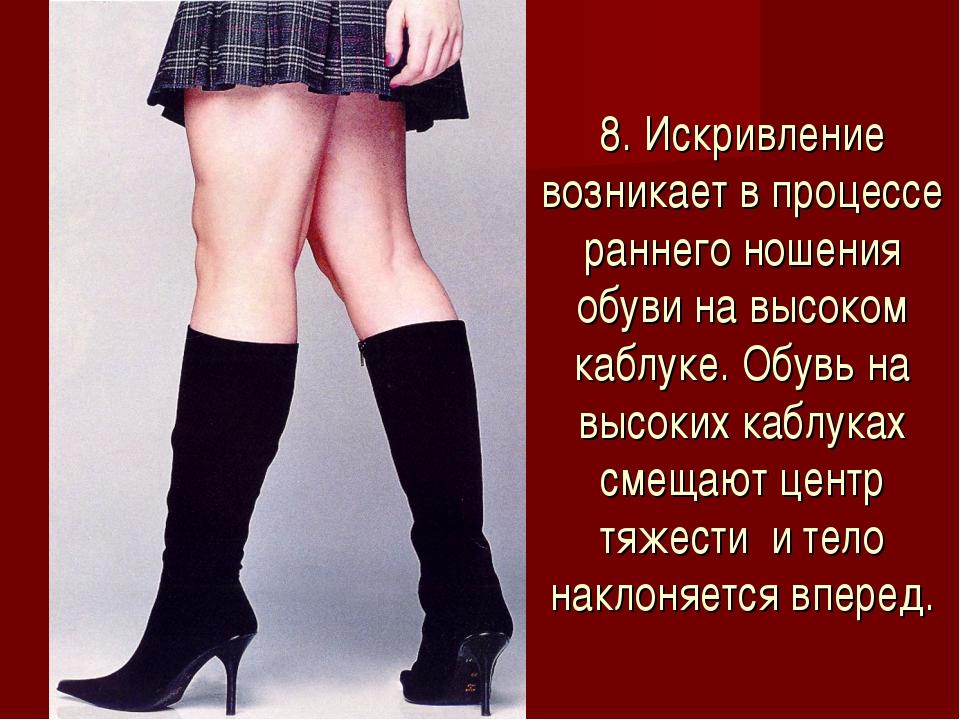 8. Искривление возникает в процессе раннего ношения обуви на высоком каблуке....