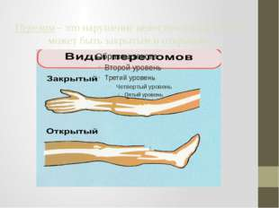 Перелом – это нарушение целостности кости. Он может быть закрытым и открытым
