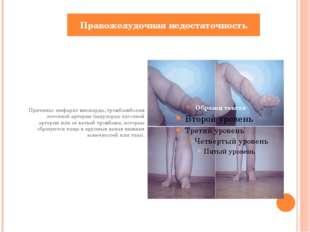 Причины: инфаркт миокарда, тромбоэмболия легочной артерии (закупоркалёгочно