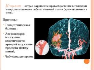 Инсульт - острое нарушение кровообращения в головном мозгу, вызывающее гибель