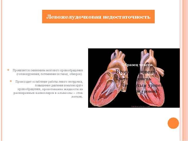 Проявляется снижением мозгового кровообращения (головокружения, потемнение в...