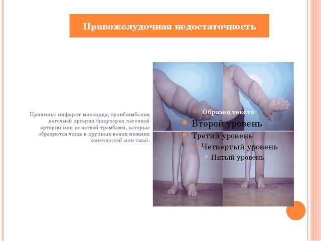 Причины: инфаркт миокарда, тромбоэмболия легочной артерии (закупоркалёгочно...