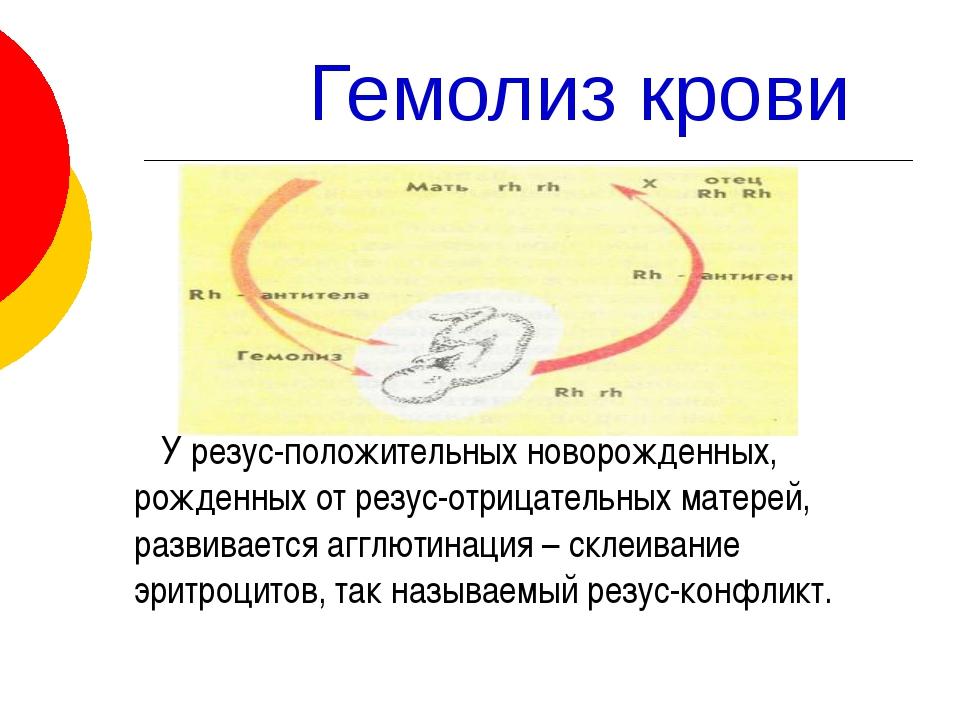 Гемолиз крови У резус-положительных новорожденных, рожденных от резус-отрица...