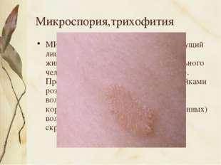 Микроспория,трихофития МИКРОСПОРИЯ, трихофития (стригущий лишай), дерматомик