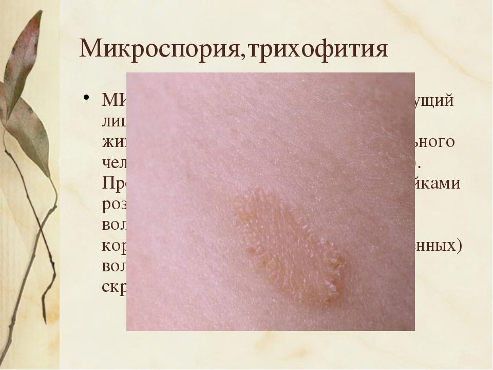 Микроспория,трихофития МИКРОСПОРИЯ, трихофития (стригущий лишай), дерматомик...