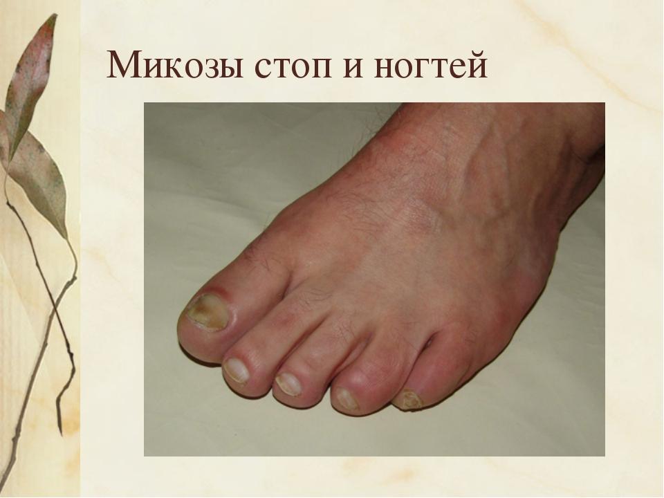 Микозы стоп и ногтей