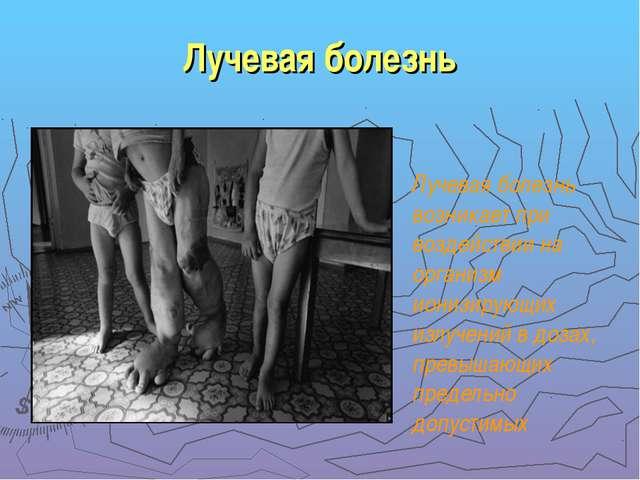 Лучевая болезнь Лучевая болезнь возникает при воздействии на организм ионизир...