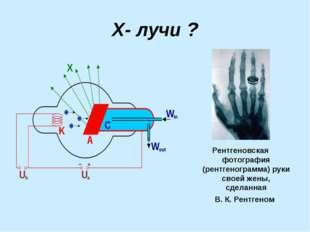 Х- лучи ? Рентгеновская фотография (рентгенограмма) руки своей жены, сделанна
