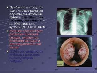 Прибавьте к этому тот факт, что все раковые опухоли дыхательных путей – рак г
