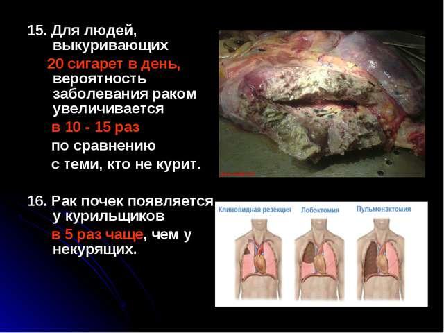 15. Для людей, выкуривающих 20 сигарет в день, вероятность заболевания раком...