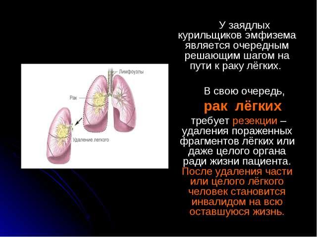 У заядлых курильщиков эмфизема является очередным решающим шагом на пути к р...