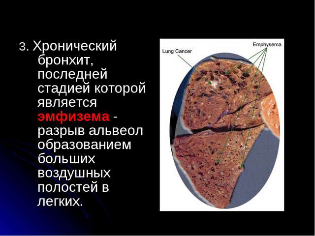 3. Хронический бронхит, последней стадией которой является эмфизема - разрыв...