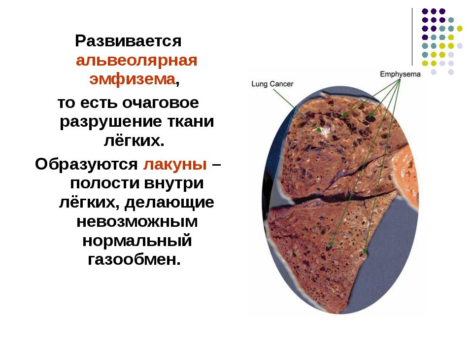 Развивается альвеолярная эмфизема, то есть очаговое разрушение ткани лёгких....