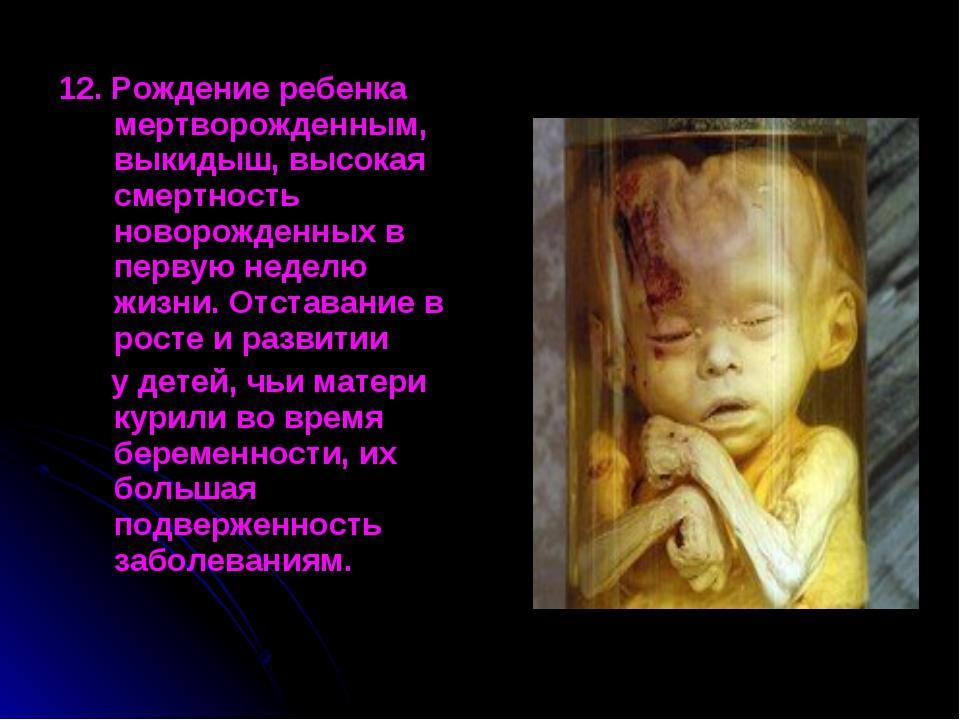 12. Рождение ребенка мертворожденным, выкидыш, высокая смертность новорожденн...