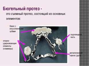 Бюгельный протез - это съемный протез, состоящий из основных элементов: метал