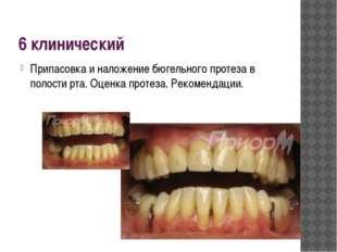 6 клинический Припасовка и наложение бюгельного протеза в полости рта. Оценка
