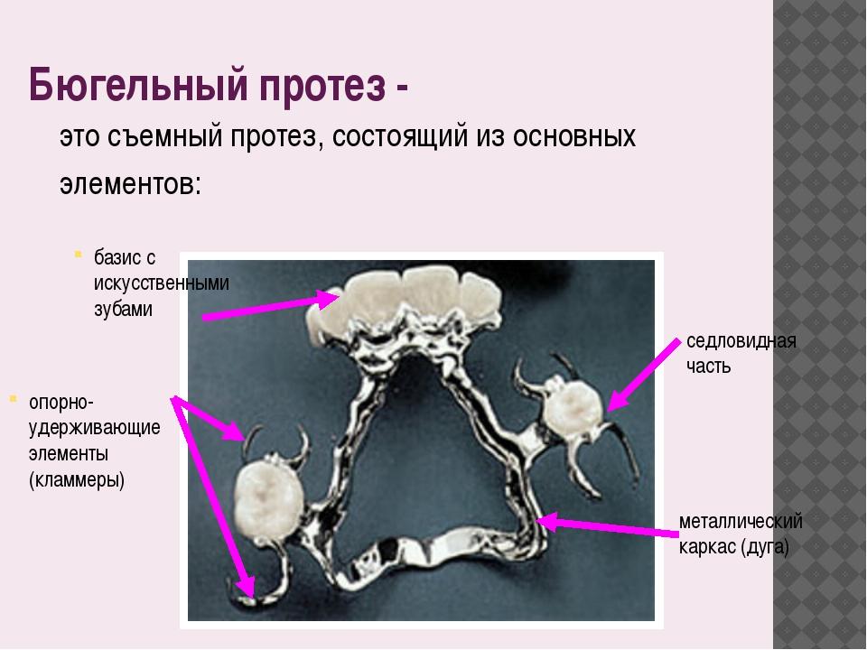 Бюгельный протез - это съемный протез, состоящий из основных элементов: метал...