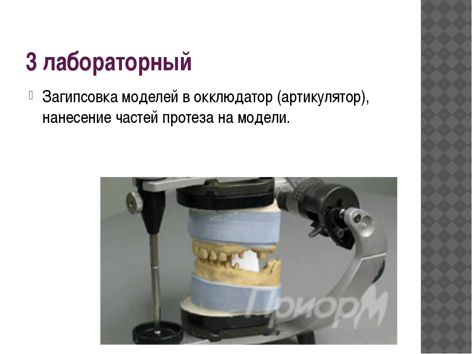3 лабораторный Загипсовка моделей в окклюдатор (артикулятор), нанесение часте...