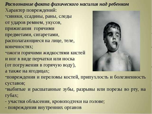 Распознание факта физического насилия над ребенком Характер повреждений: синя...