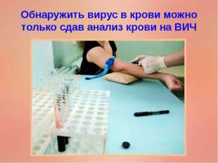 Обнаружить вирус в крови можно только сдав анализ крови на ВИЧ