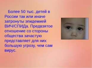 Более 50 тыс. детей в России так или иначе затронуты эпидемией ВИЧ/СПИДа. Пр