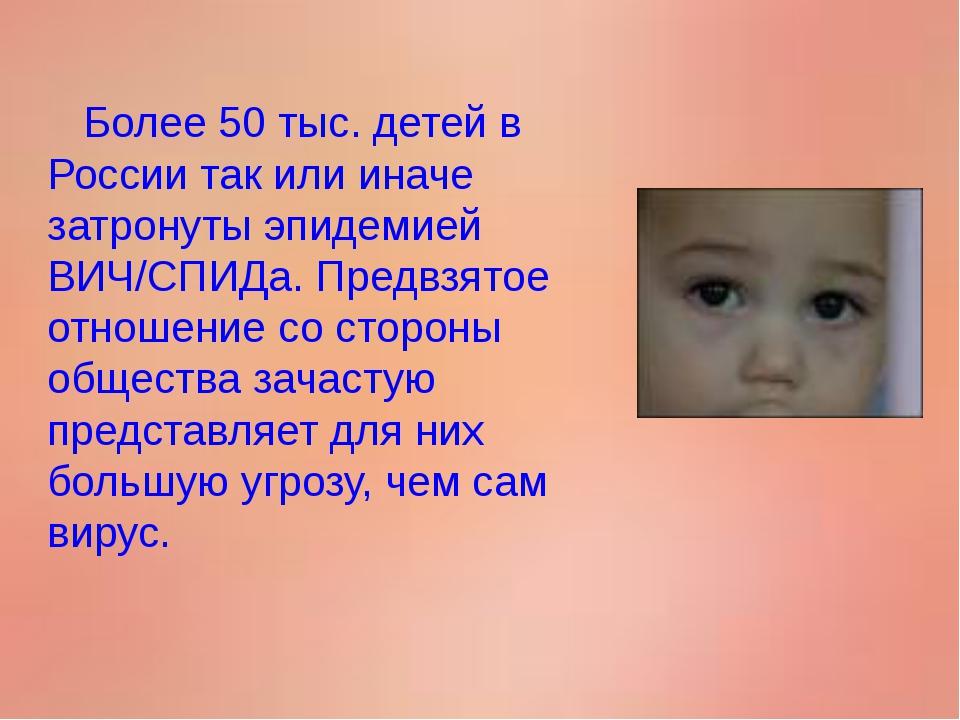 Более 50 тыс. детей в России так или иначе затронуты эпидемией ВИЧ/СПИДа. Пр...