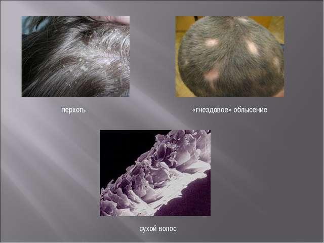 перхоть «гнездовое» облысение сухой волос