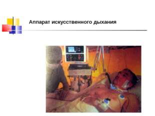 Аппарат искусственного дыхания
