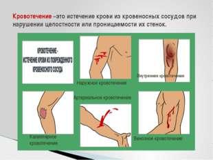 Кровотечение –это истечение крови из кровеносных сосудов при нарушении целост