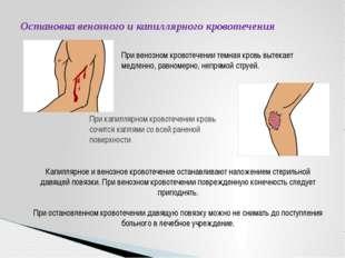 Остановка венозного и капиллярного кровотечения При венозном кровотечении тем
