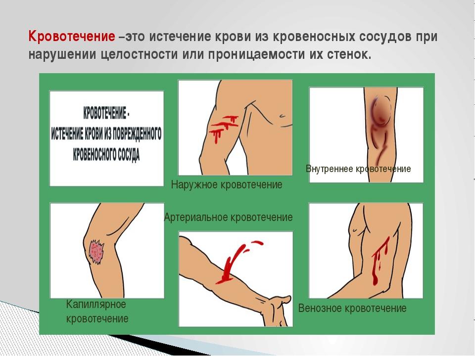Кровотечение –это истечение крови из кровеносных сосудов при нарушении целост...