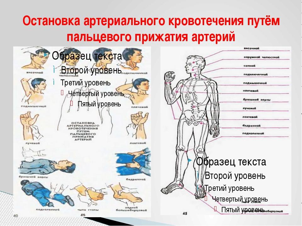 Остановка артериального кровотечения путём пальцевого прижатия артерий